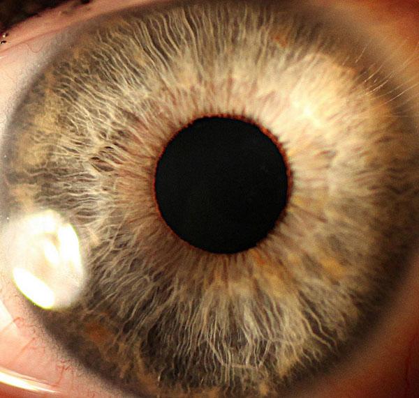 EyeCloseUp(AOP)